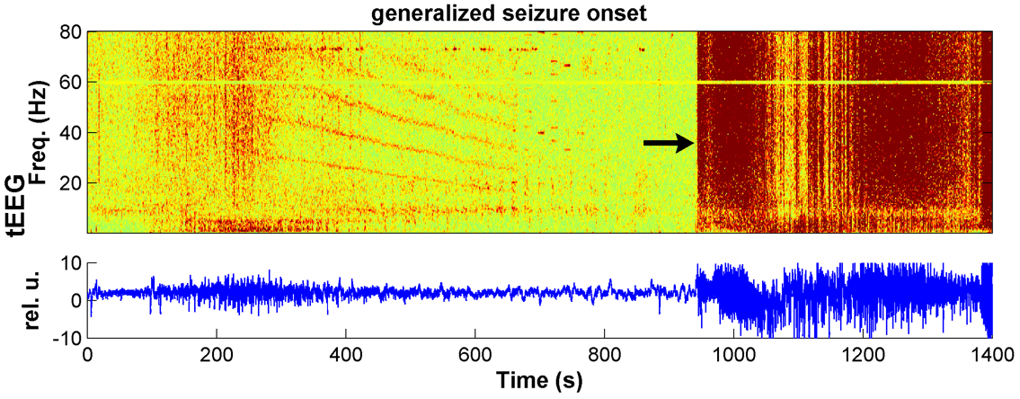 Seizure displayed on an EEG.
