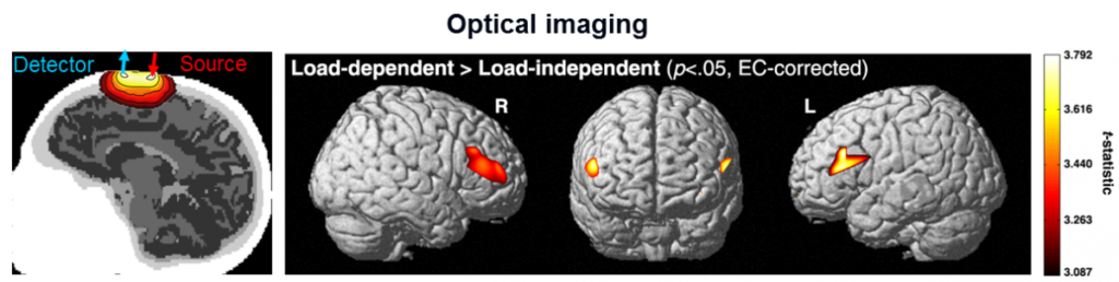 seizure being shown using optical imaging.